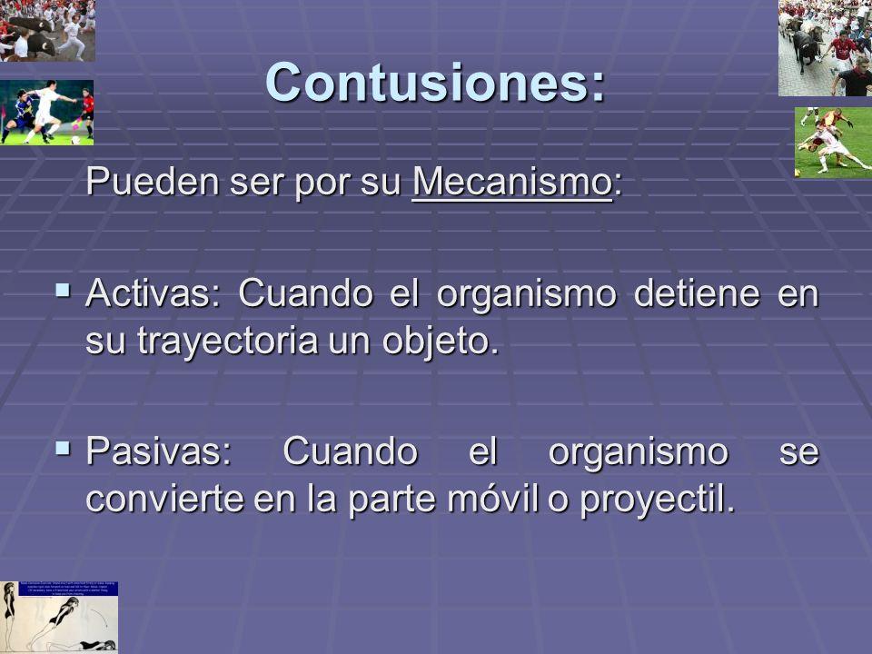 Contusiones: Pueden ser por su Mecanismo: