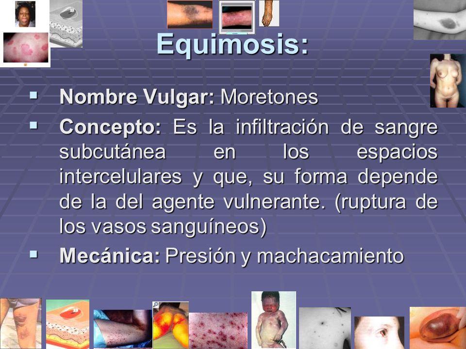 Equimosis: Nombre Vulgar: Moretones