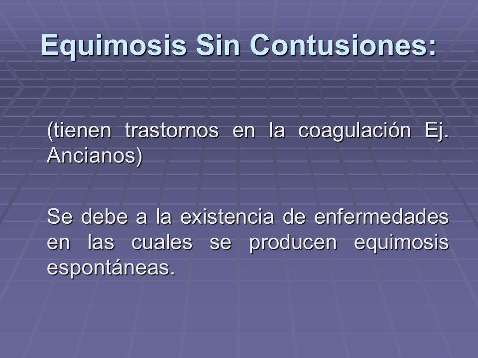 Equimosis Sin Contusiones: