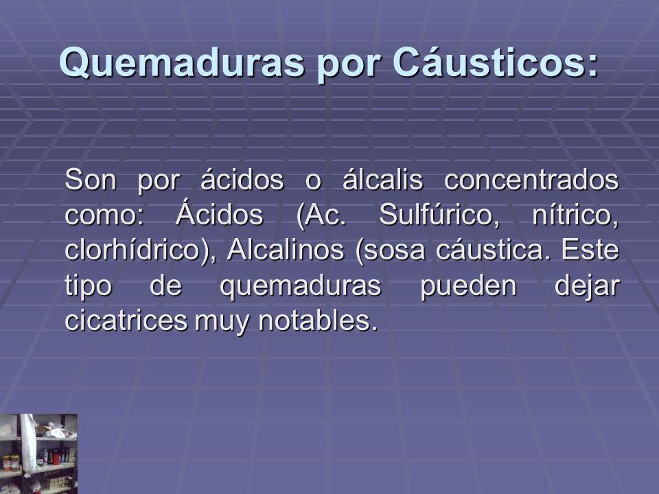 Quemaduras por Cáusticos: