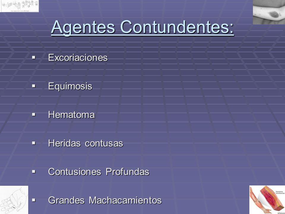 Agentes Contundentes: