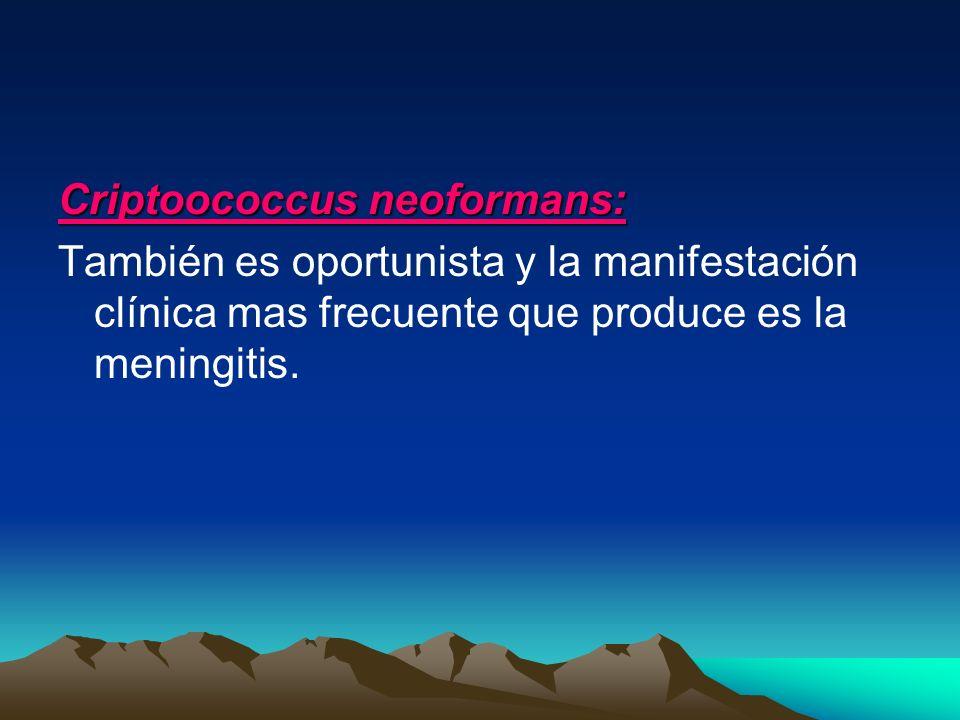 Criptoococcus neoformans: