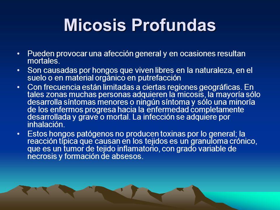 Micosis Profundas Pueden provocar una afección general y en ocasiones resultan mortales.