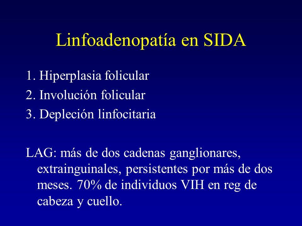 Linfoadenopatía en SIDA