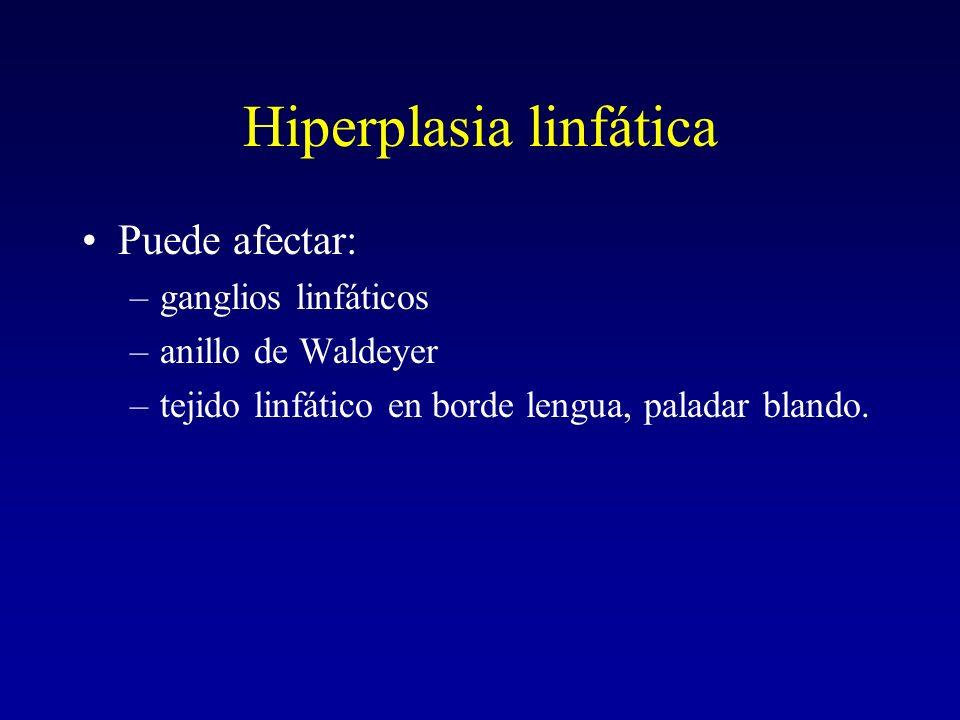 Hiperplasia linfática