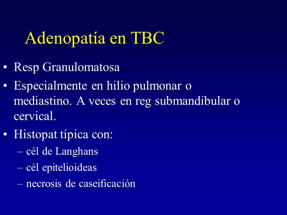 Adenopatía en TBC Resp Granulomatosa