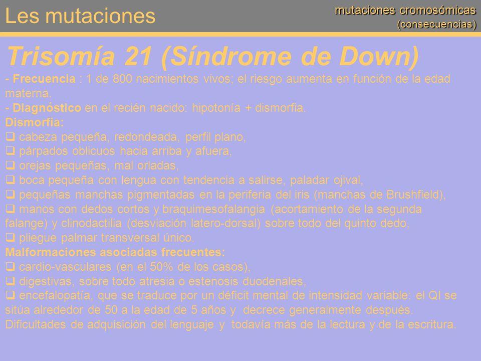 Trisomía 21 (Síndrome de Down)