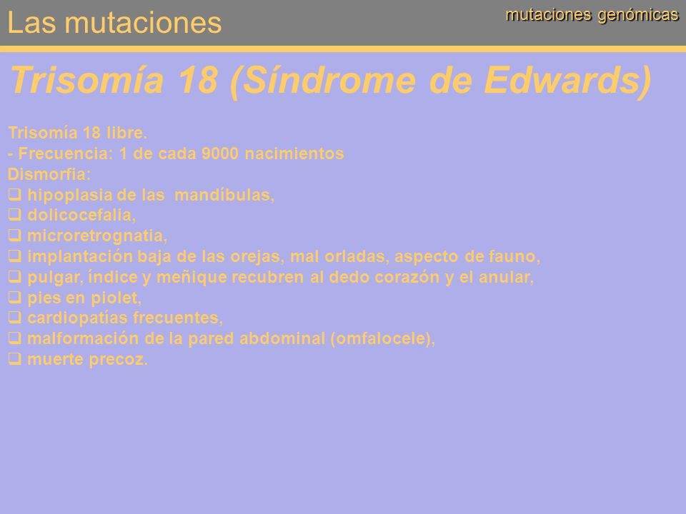 Trisomía 18 (Síndrome de Edwards)