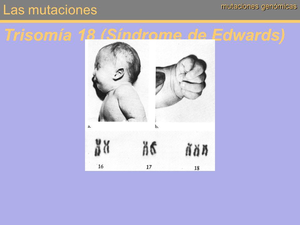 Trisomía 18 (Síndrome de Edwards)