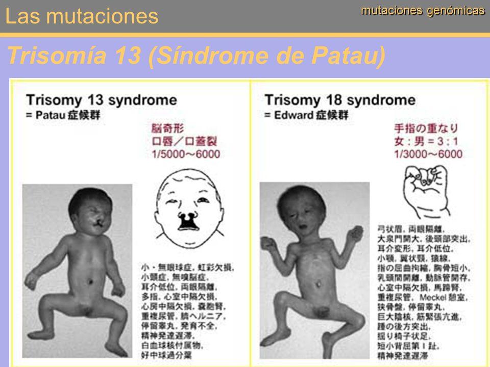 Trisomía 13 (Síndrome de Patau)