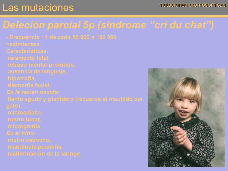 Deleción parcial 5p (síndrome cri du chat )