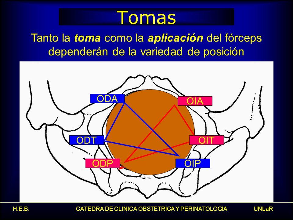 Tomas Tanto la toma como la aplicación del fórceps dependerán de la variedad de posición. ODA. ODT.