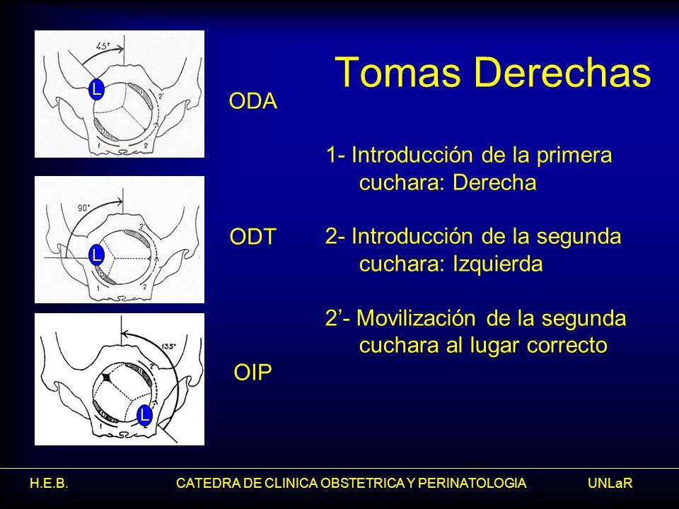 Tomas Derechas ODA 1- Introducción de la primera cuchara: Derecha ODT