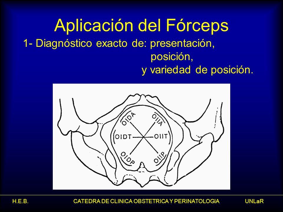 Aplicación del Fórceps