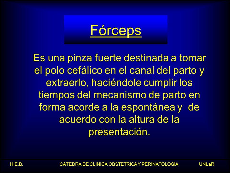 Fórceps