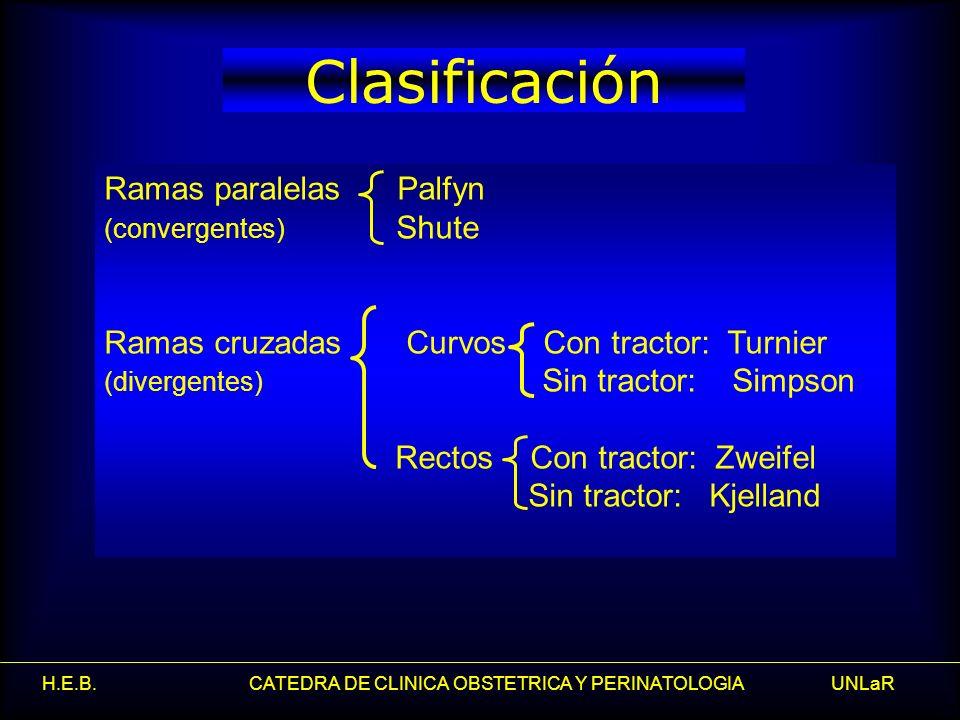 Clasificación Ramas paralelas Palfyn