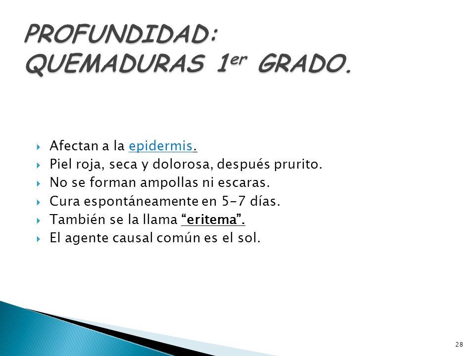 PROFUNDIDAD: QUEMADURAS 1er GRADO.