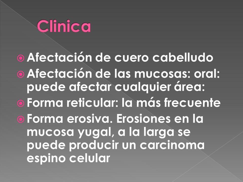 Clinica Afectación de cuero cabelludo