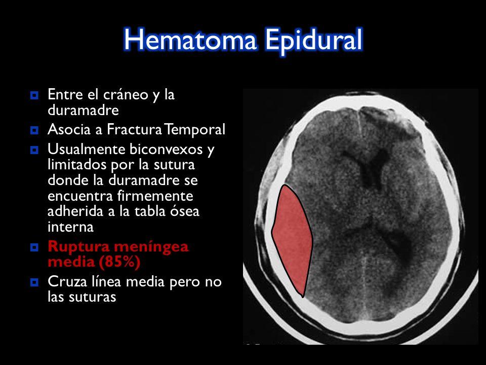 Hematoma Epidural Entre el cráneo y la duramadre
