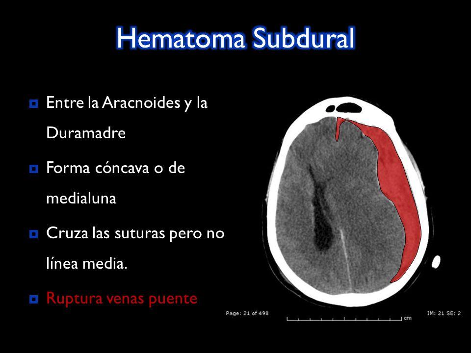 Hematoma Subdural Entre la Aracnoides y la Duramadre