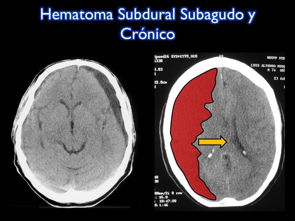 Hematoma Subdural Subagudo y Crónico