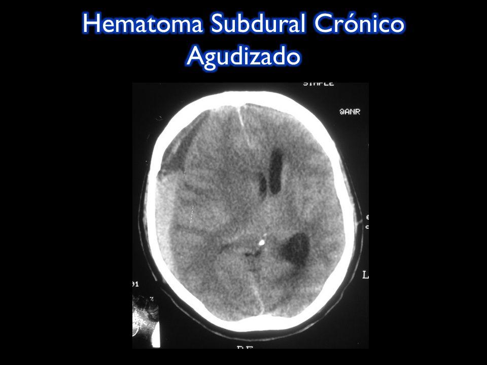 Hematoma Subdural Crónico Agudizado
