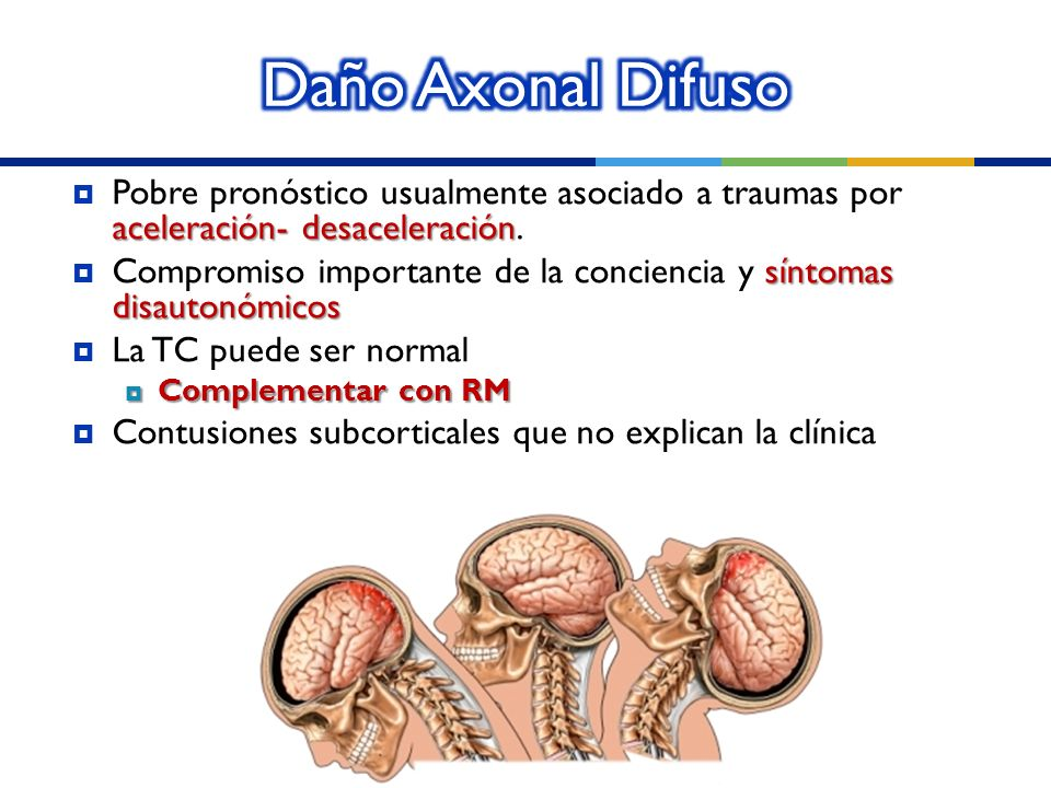 Daño Axonal Difuso Pobre pronóstico usualmente asociado a traumas por aceleración- desaceleración.