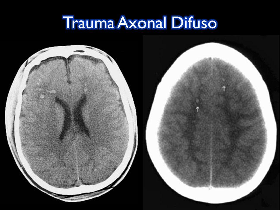 Trauma Axonal Difuso