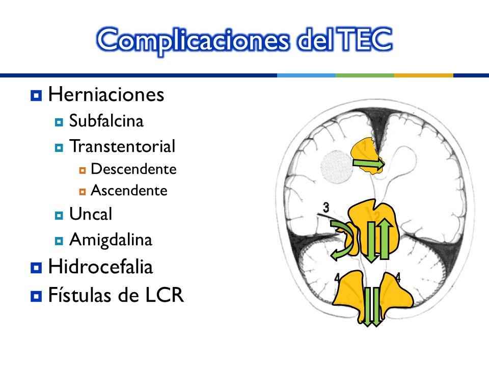 Complicaciones del TEC