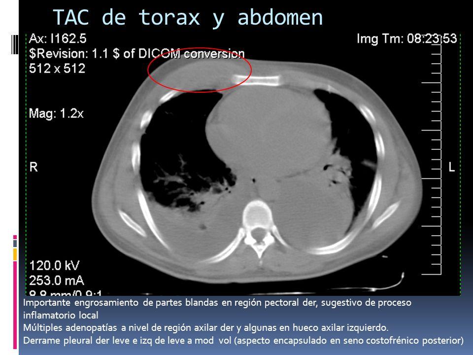 TAC de torax y abdomen Importante engrosamiento de partes blandas en región pectoral der, sugestivo de proceso inflamatorio local.