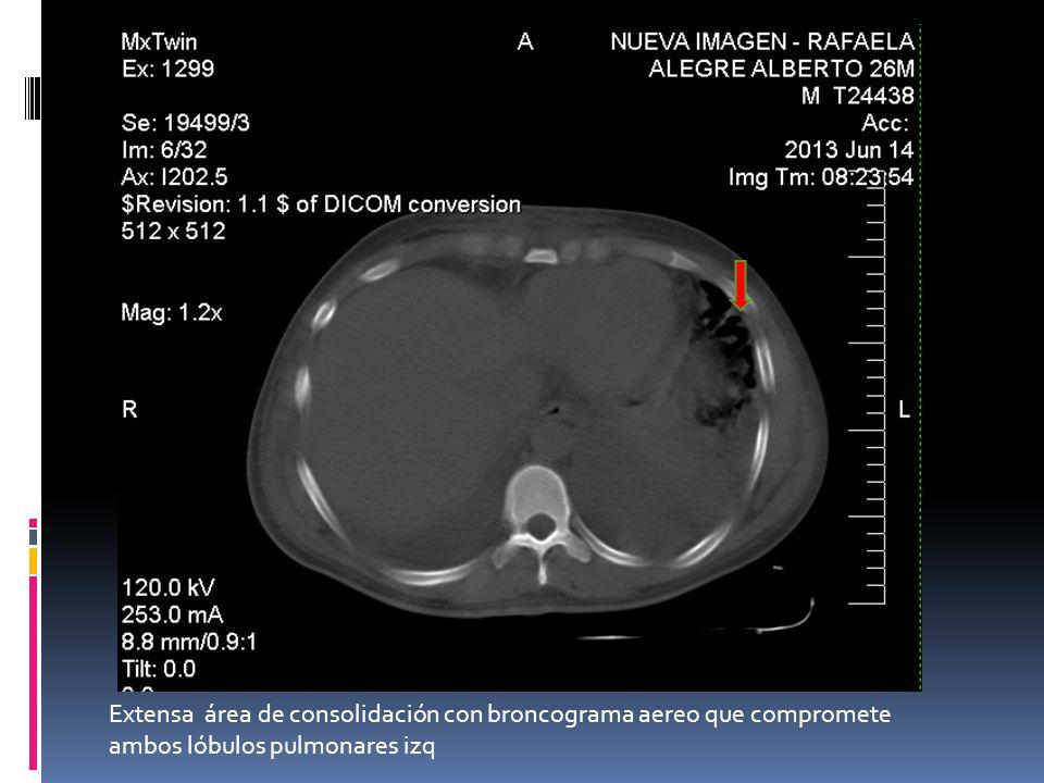 Extensa área de consolidación con broncograma aereo que compromete ambos lóbulos pulmonares izq
