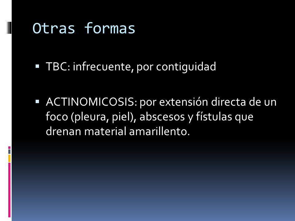 Otras formas TBC: infrecuente, por contiguidad