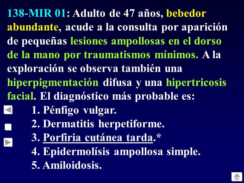 138-MIR 01: Adulto de 47 años, bebedor abundante, acude a la consulta por aparición de pequeñas lesiones ampollosas en el dorso de la mano por traumatismos mínimos. A la exploración se observa también una hiperpigmentación difusa y una hipertricosis facial. El diagnóstico más probable es: