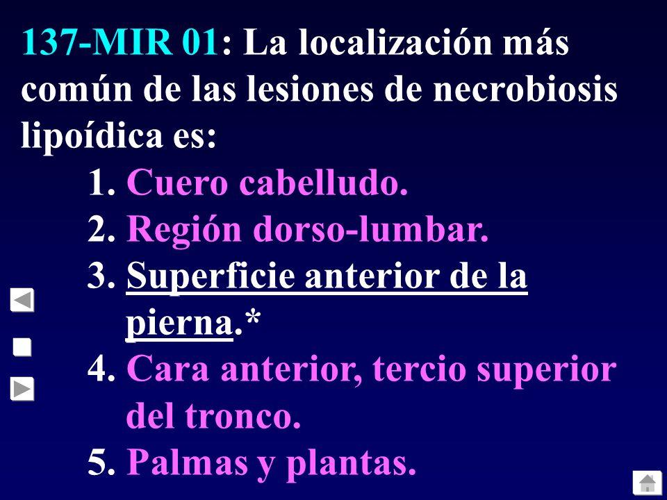 137-MIR 01: La localización más común de las lesiones de necrobiosis lipoídica es: