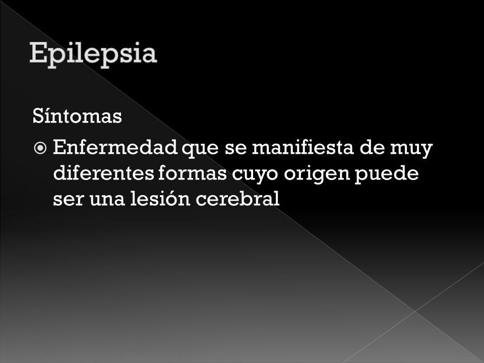 Epilepsia Síntomas.