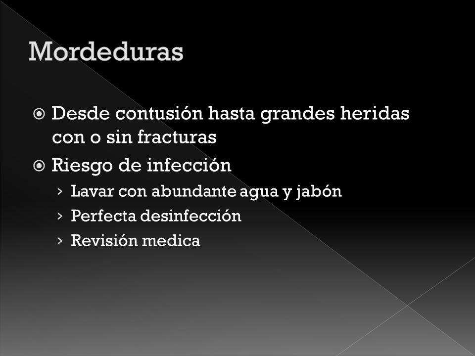 Mordeduras Desde contusión hasta grandes heridas con o sin fracturas