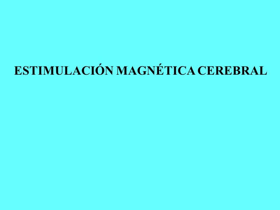 ESTIMULACIÓN MAGNÉTICA CEREBRAL