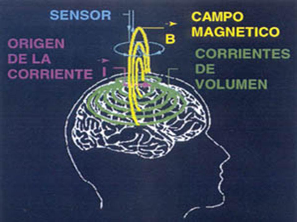 Fig. 2.: Corrientes implicadas en la generación de potenciales.