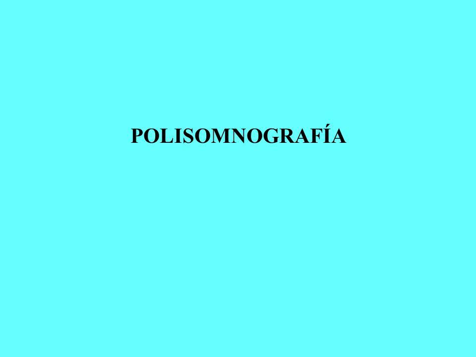 POLISOMNOGRAFÍA