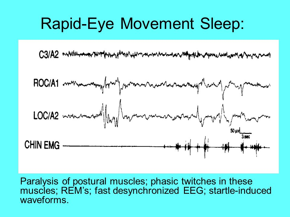 Rapid-Eye Movement Sleep: