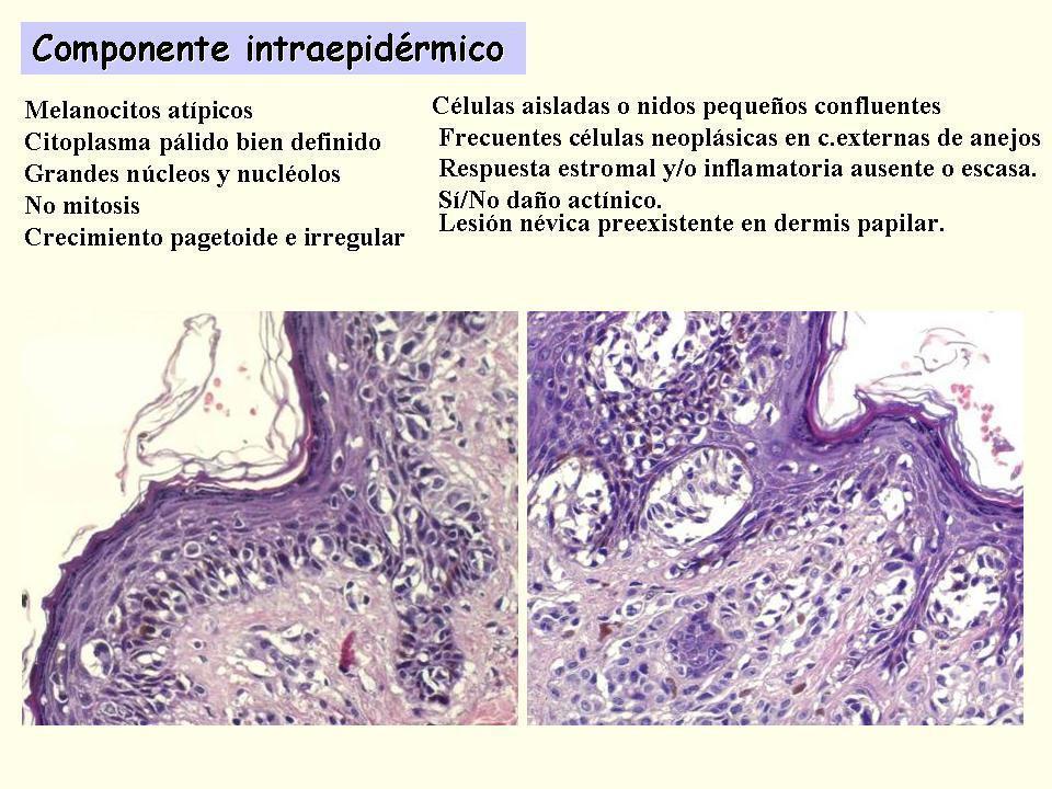 Se han descrito 4 tipos principales y numerosas variantes, cuyas diferencias conllevan implicaciones diagnósticas, epidemiológicas, terapéuticas y pronósticas.