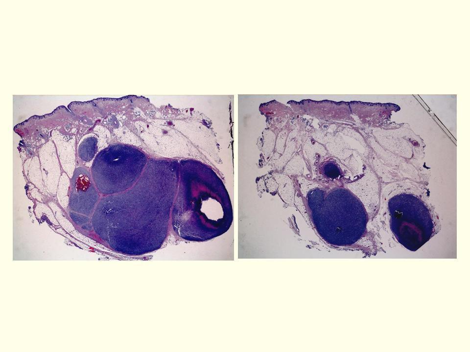 15.- Microsatelitosis o satelitosis microscópica: presencia de nidos de células tumorales de al menos 0,05 mm. Localizados en dermis, hipodermis o vasos, junto a la lesión principal, pero separada de ella al menos por 0,3 mm de tejido normal (colágeno y/o grasa).