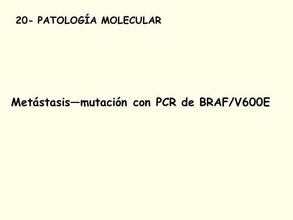 Metástasis—mutación con PCR de BRAF/V600E