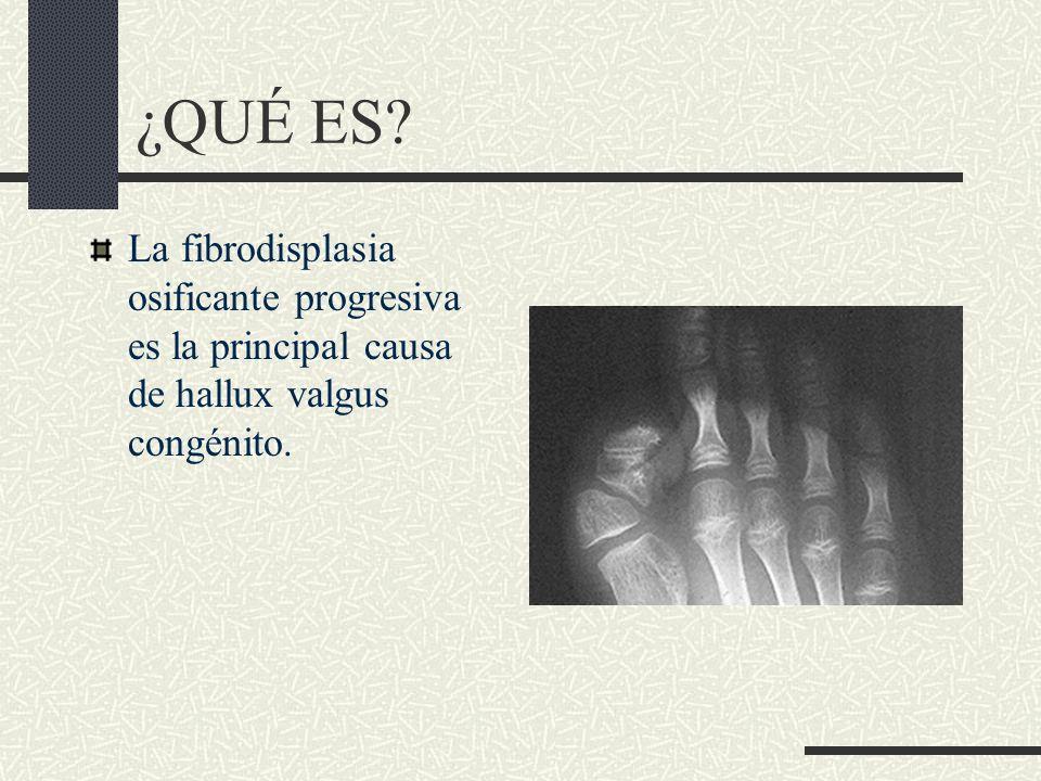 ¿QUÉ ES La fibrodisplasia osificante progresiva es la principal causa de hallux valgus congénito.