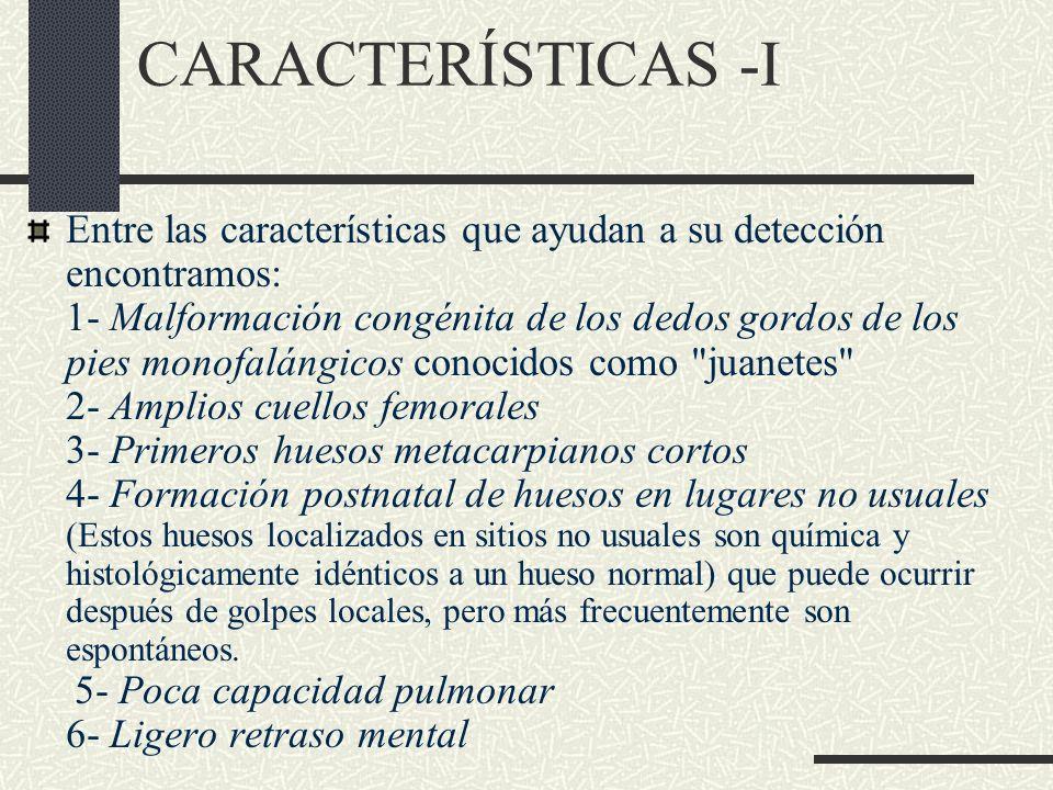 CARACTERÍSTICAS -I