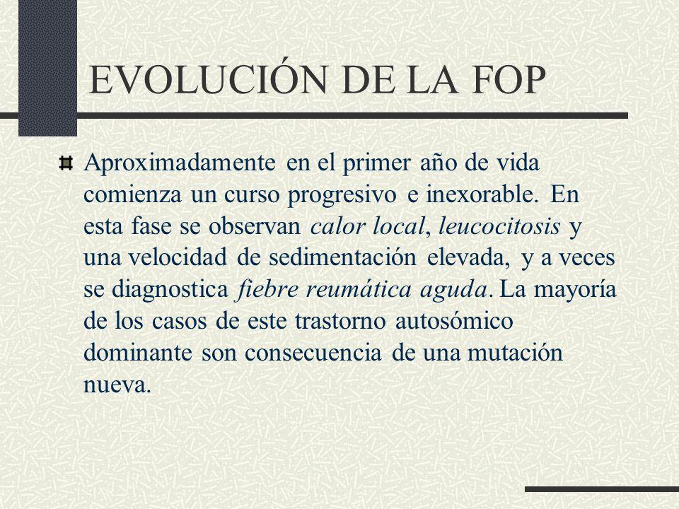 EVOLUCIÓN DE LA FOP
