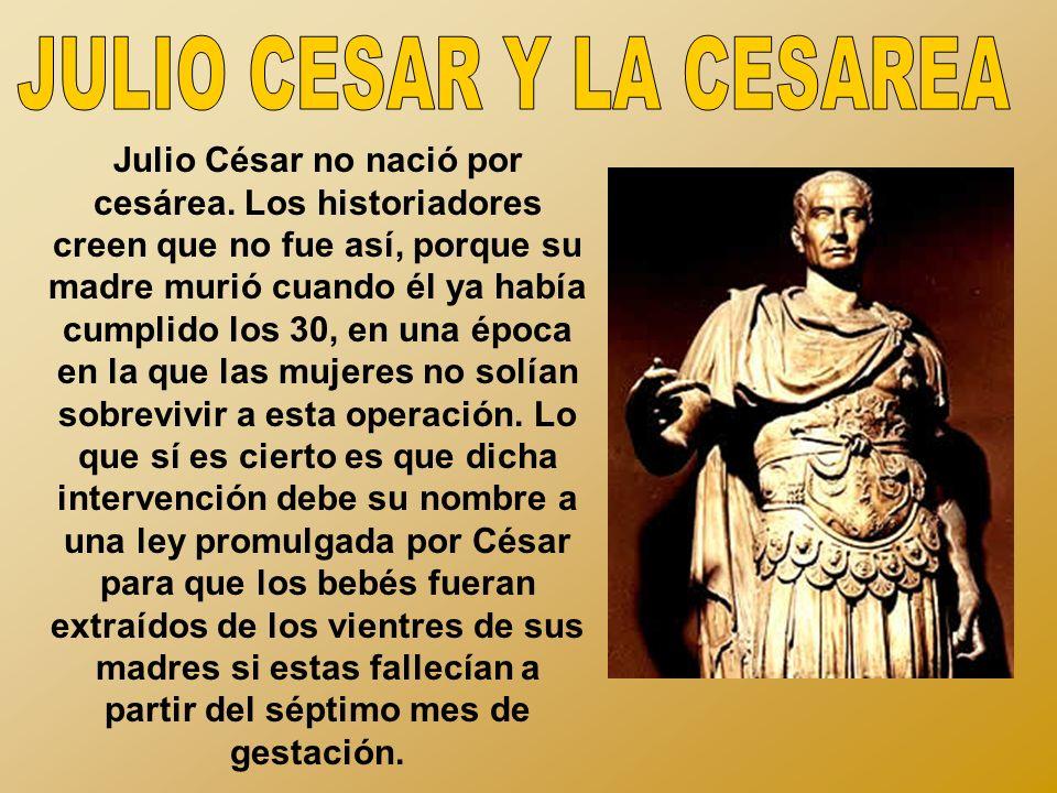 JULIO CESAR Y LA CESAREA