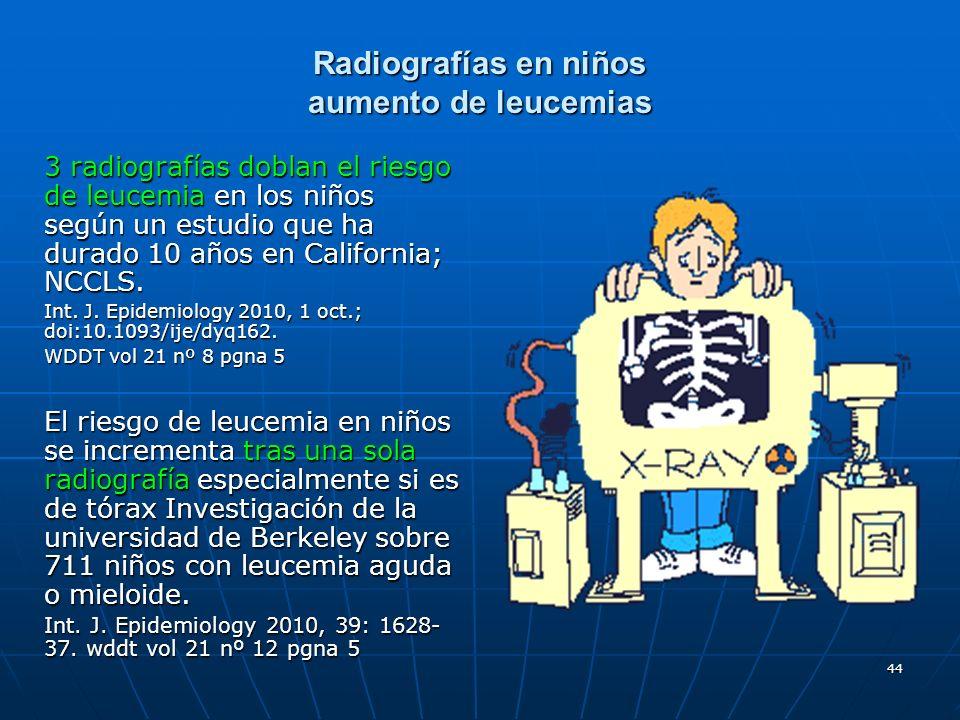 Radiografías en niños aumento de leucemias