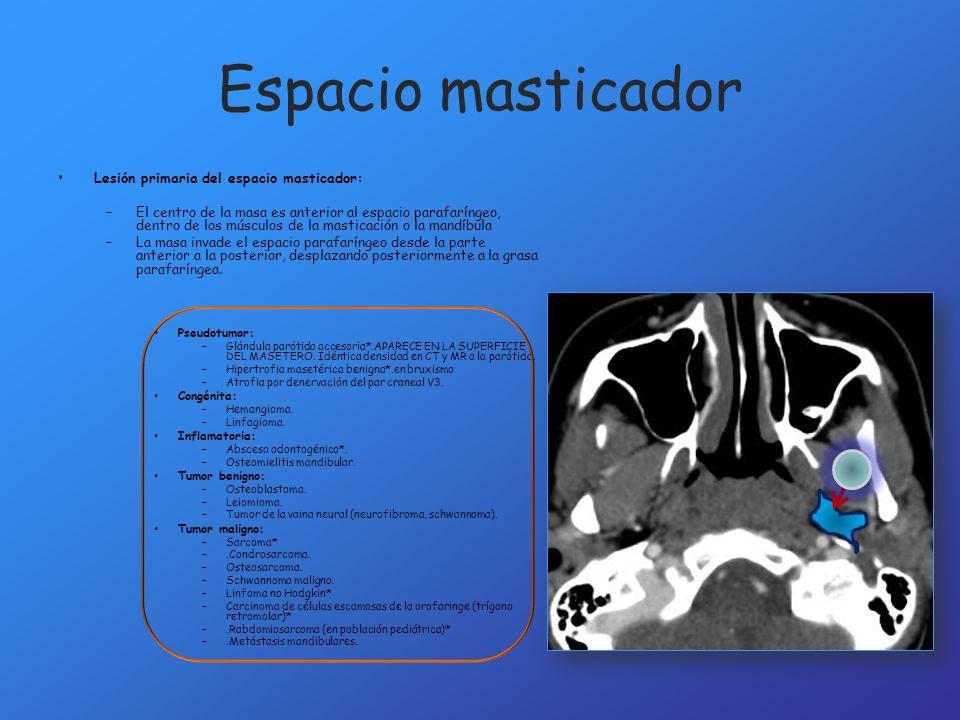 Espacio masticador Lesión primaria del espacio masticador:
