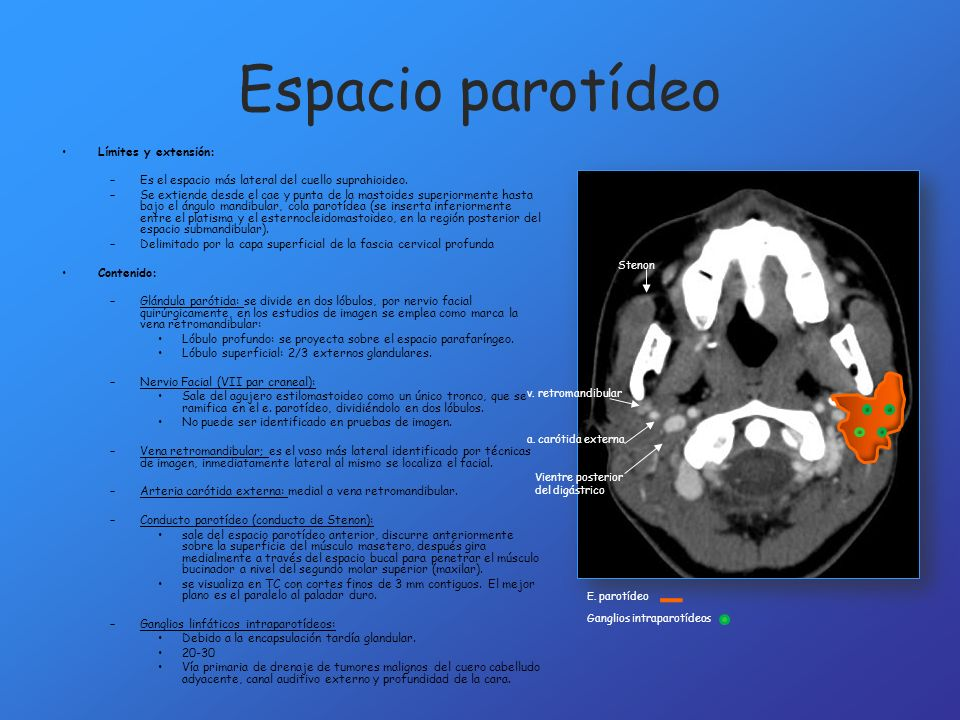 Espacio parotídeo Límites y extensión: